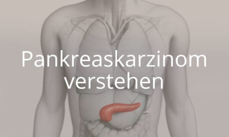 Pankreaskarzinom - Operationsarten