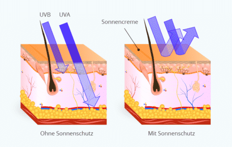 Sonnenschutz UV-Strahlung