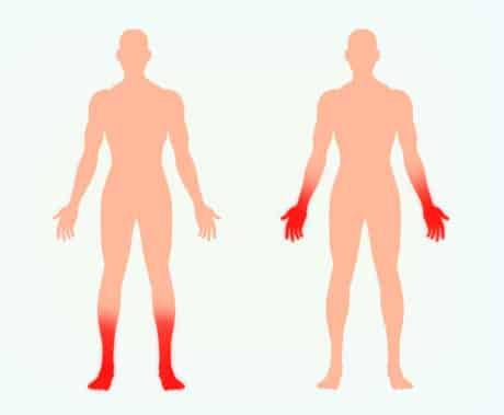 Socken- und handschuhförmige Polyneuropathie