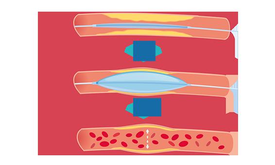 Ballonangioplastie der Lungenarterien - Eingriff bei CTEPH