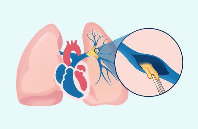 Pulmonale Endarterektomie - Chirurgischer Eingriff zur Behandlung der CTEPH
