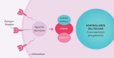 Kontrollierte Zellteilung durch CDK4/6-Inhibitoren bei metastasiertem Brustkrebs