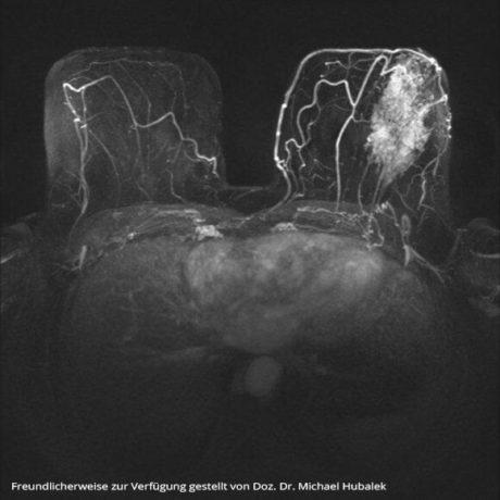 Magnetresonanztomographie (MRT) der Brust