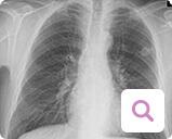 Diagnoseverfahren bei metastasiertem Brustkrebs: Lungenröntgen