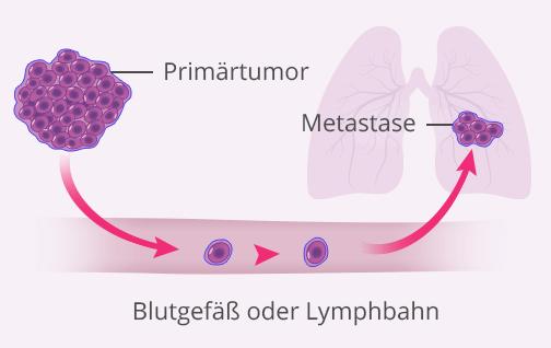 Wie entstehen Metastasen bei Brustkrebs
