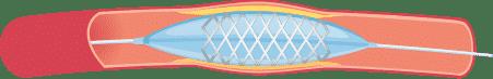 Ballondilation und Stent Schritt 2