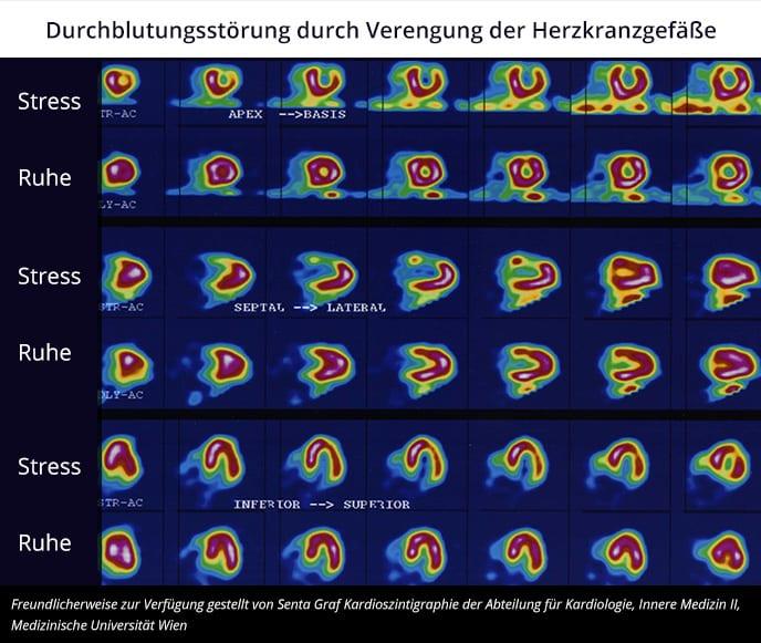 Myokardszinigrafie: Durchblutungsstörung durch Verengung der Herzkranzgefäße