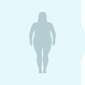 Angina pectoris Risikofaktor Übergewicht