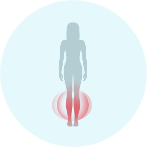Symptome der Angina pectoris bei Frauen: Ödeme der unteren Extremitäten