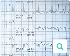 Diagnose der Angina pectoris: Untersuchungsmethode Elektrokardiogramm (EKG)