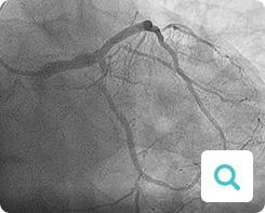 Diagnose der Angina pectoris: Untersuchungsmethode Koronar-Angiografie