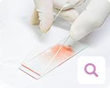 Nachweismethoden für Blutkrebs: Mikroskopischer Nachweis