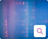 Nachweismethoden für Blutkrebs: Molekularbiologischer Nachweis