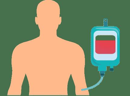 Ablauf CAR-T-Zell-Therapie: Vorbereitende Chemotherapie