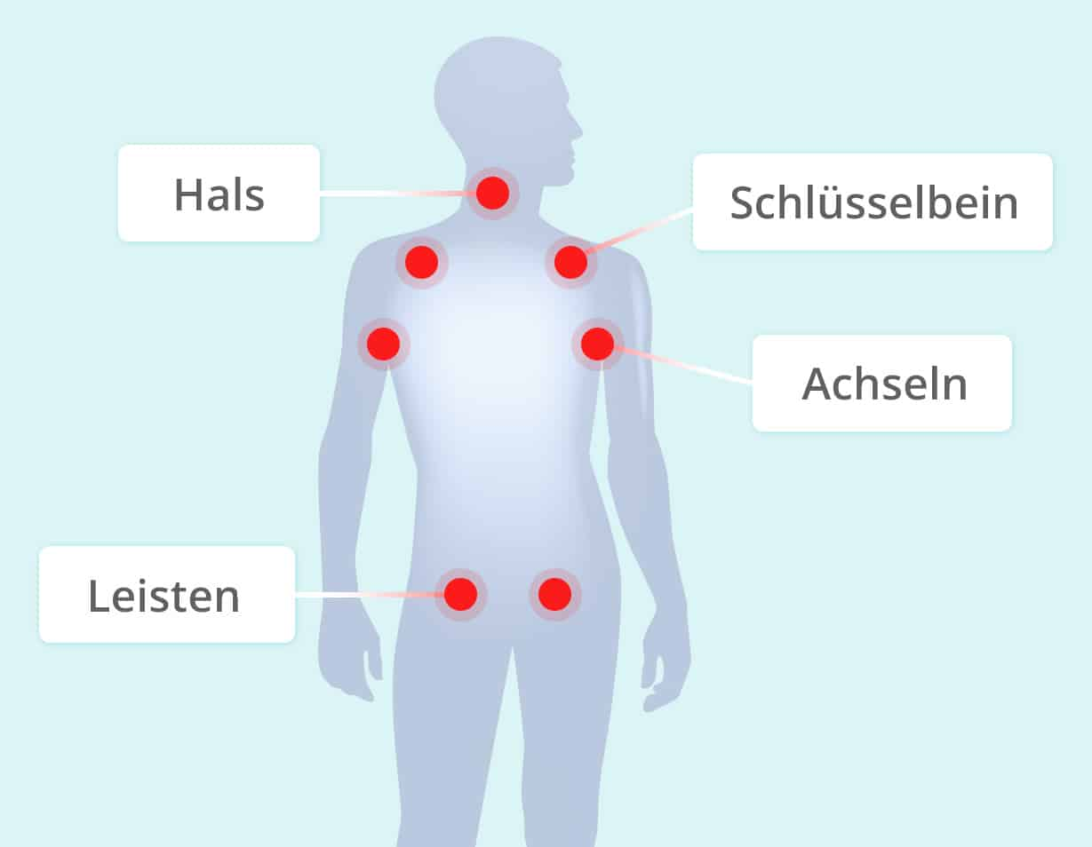 Lymphknotenschwellungen Koerperregionen