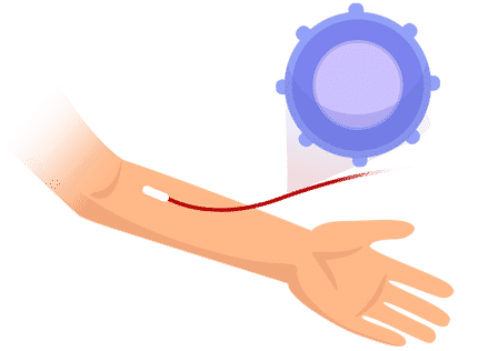 Ablauf CAR-T-Zell-Therapie: Gewinnung der_T-Zellen