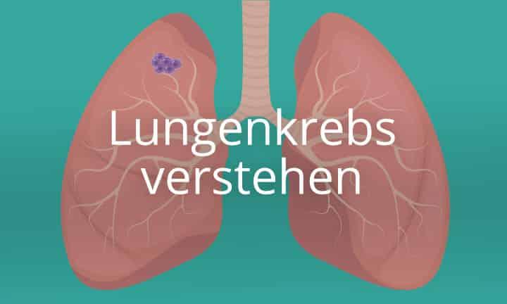Lungenkrebs verstehen