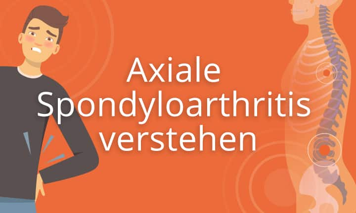 Axiale Spondyloarthritis verstehen - Dr.Josef Hermann